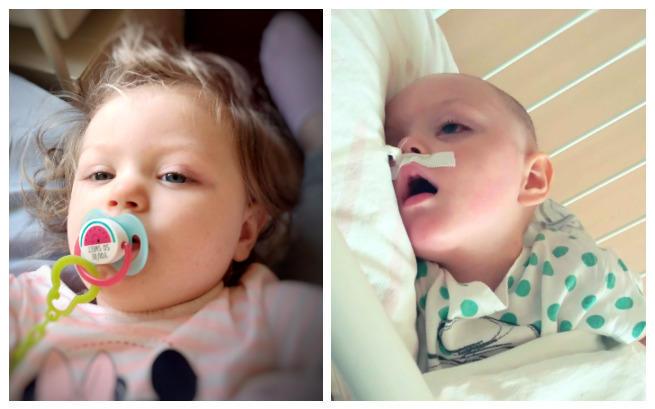 Mała Hania walczy o życie - trwa zbiórka na leczenie